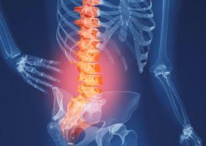 МРТ пояснично-кресцового отдела позвоночника и копчик